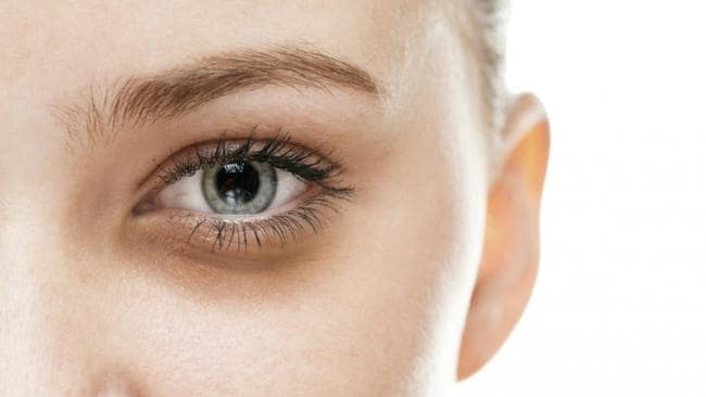 Dark Circles, Get Rid Of Dark Circles